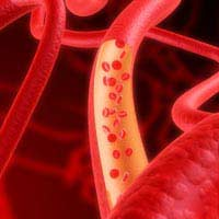 Fibrinogen Blood Clotting Heart Surgery
